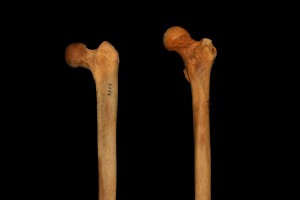femur inclination
